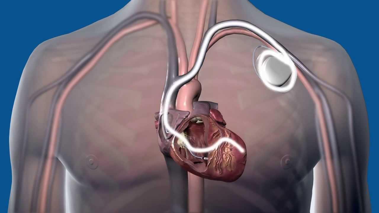 CRT D surgery