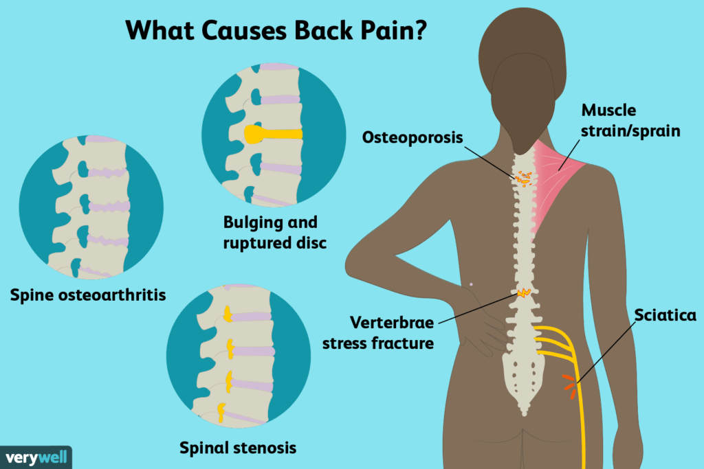 Relieve Common Back Pain